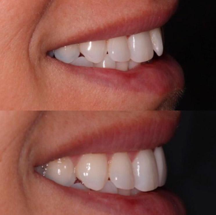 Correção de formato de um único dente