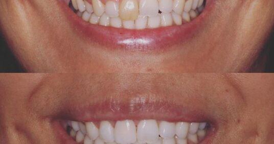 Clareamento dental e faceta de porcelana